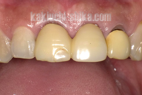 治療前の前歯