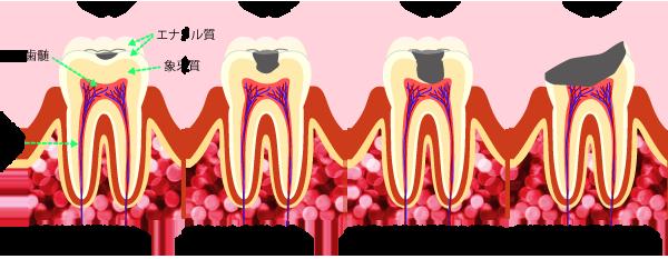 虫歯の進行C1~C4