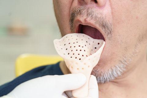 歯とお口の型取り
