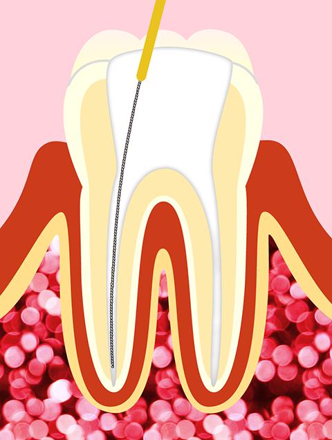 根管治療のイメージ