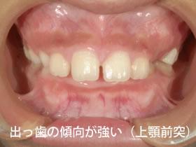 出っ歯の傾向が強い(上顎前突)