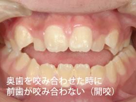 奥歯を咬み合わせた時に前歯が咬み合わない(開咬)
