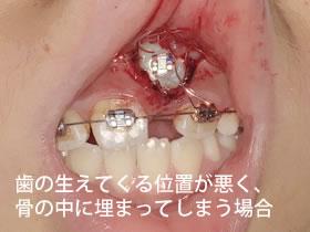 歯の生えてくる位置が悪く、骨の中に埋まってしまう場合