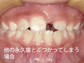 他の永久歯とぶつかってしまう場合