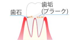 歯周病・歯肉炎を起こしている歯ぐき
