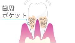 歯周病・歯周炎を起こしている歯ぐき