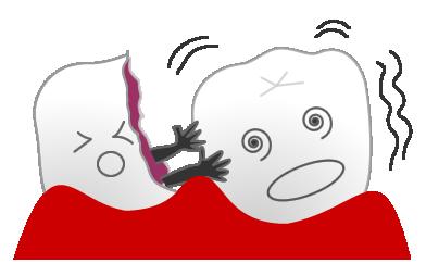 乳児の大きなむし歯が永久歯に悪影響を及ぼす