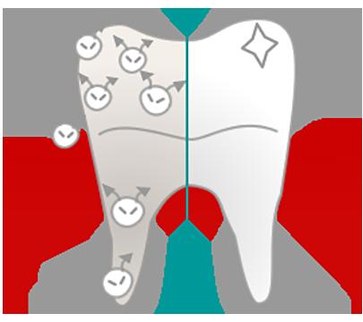 虫歯は虫歯菌による感染症