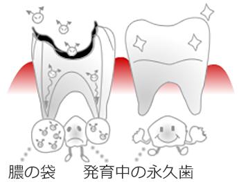 歯根の先まで虫歯の菌が感染し、膿の袋ができるほどに進行すると、生えかわるはずの永久歯に影響します