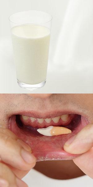 欠けた歯は牛乳やお口の中に含んで歯医者へ